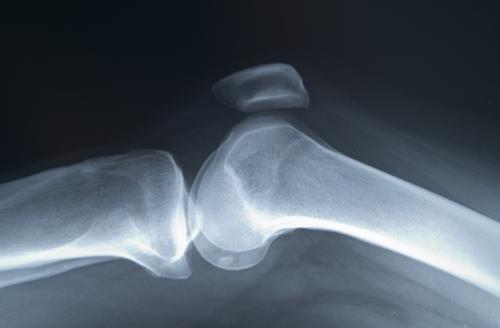 sportivii tratează articulațiile decât tratează cum se tratează neurita articulației umărului