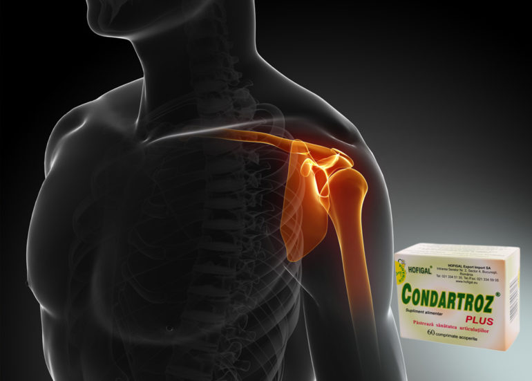 Tratament eficient pentru artroza articulației umărului