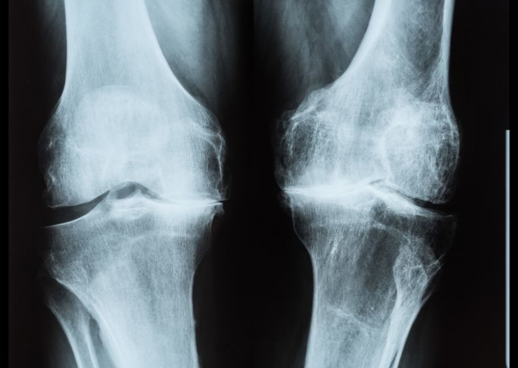 Artralgia Badan durere noaptea sub pielea genunchiului