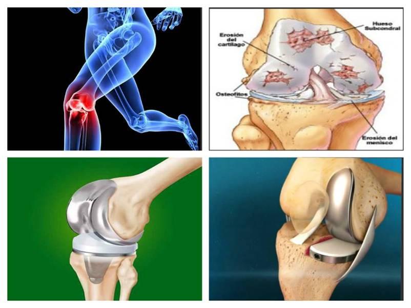 tratamentul articulațiilor femurale ale picioarelor instrucțiuni pastile de durere articulare