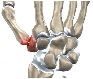 metode pentru tratamentul artrozei de gradul I