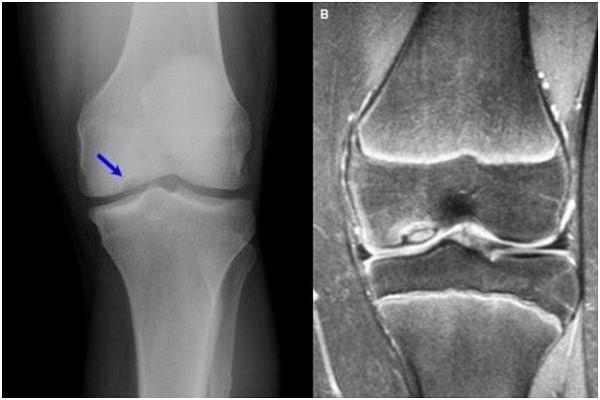 condromalacia preparatelor genunchiului dureri musculare la nivelul articulațiilor genunchiului