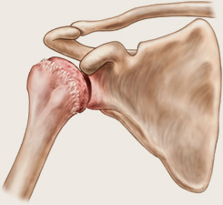 metode pentru tratamentul artrozei de gradul I unguent articular și gel