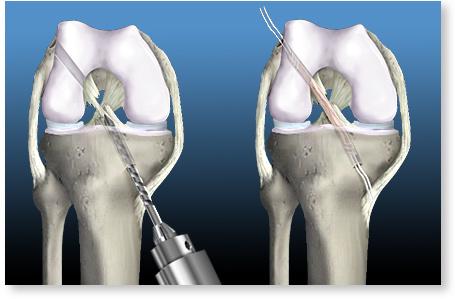 tratamentul rupturii ligamentului cruciat al articulației genunchiului