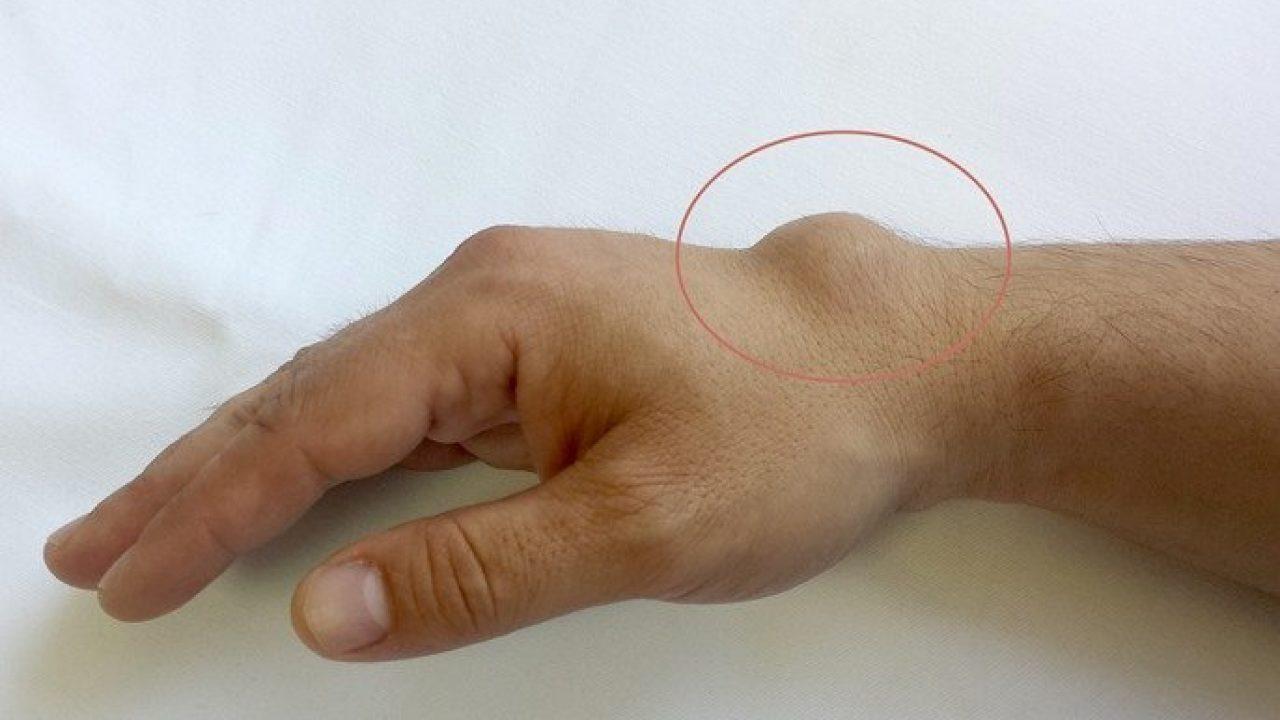 de ce doare articulația încheieturii cum se poate vindeca rapid artroza umărului