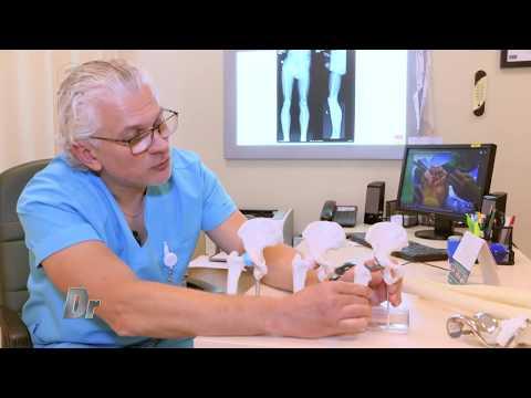 cum să tratezi artrita purulentă în articulația șoldului