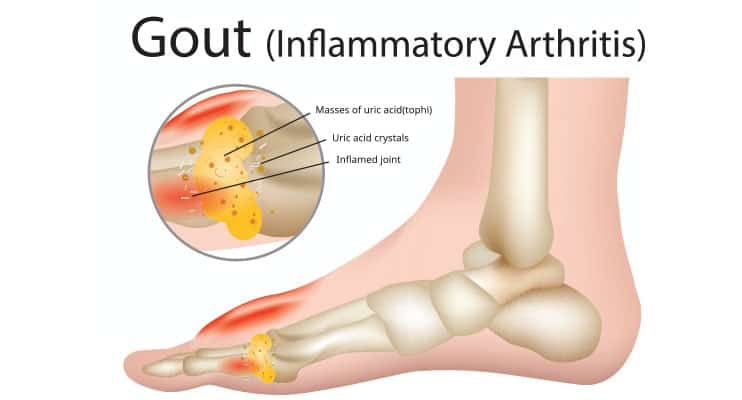 picioarele dureroase sub genunchi în spatele varicoselor