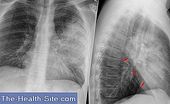 durere la medicamente pentru tratamentul osteochondrozei mamare crampe de dureri articulare