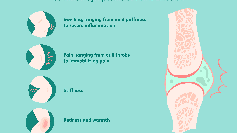 10 clase de boli osoase și articulare