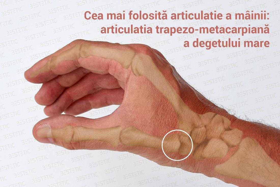 tratarea artrozei degetului mare articulație la nivelul cotului drept