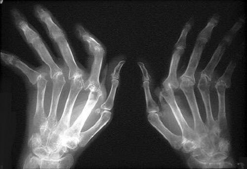 remedii pentru durerile de umăr constrângerea durerii la genunchi