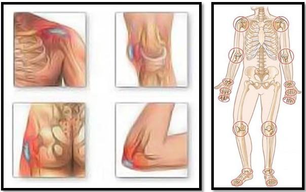 artroza semnelor articulațiilor genunchiului chiar deasupra articulației cotului doare