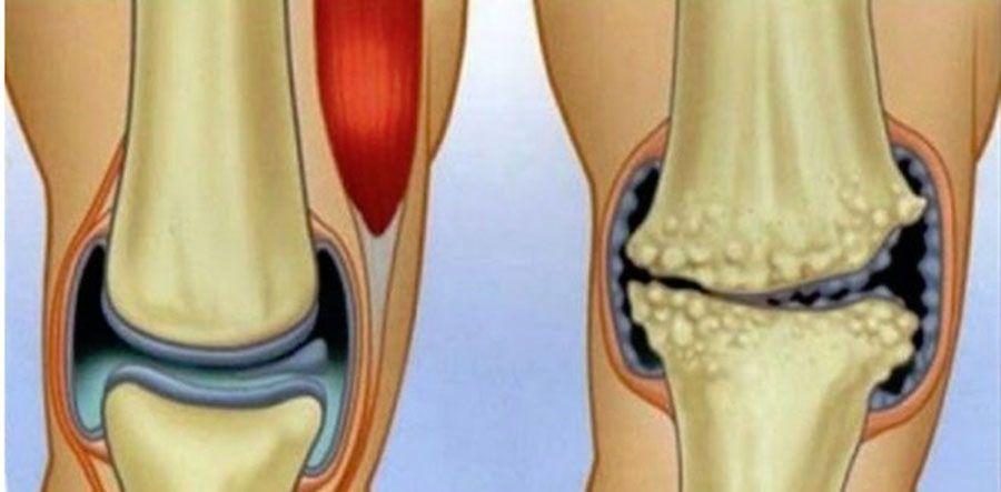 lezarea buzei articulare a articulației șoldului mijloace pentru refacerea cartilajului la nivelul coloanei vertebrale