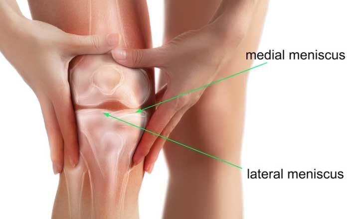 deteriorarea meniscului lateral al simptomelor articulației genunchiului unguent pentru entorsa articulației gleznei