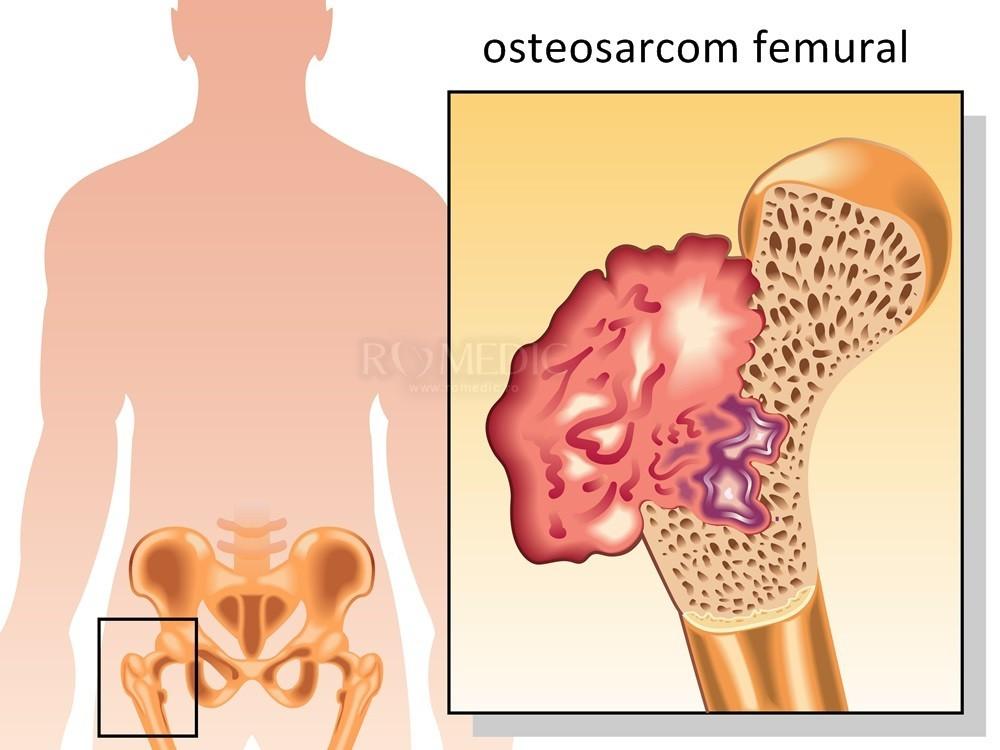 artrita supurativa acuta a articulatiei soldului
