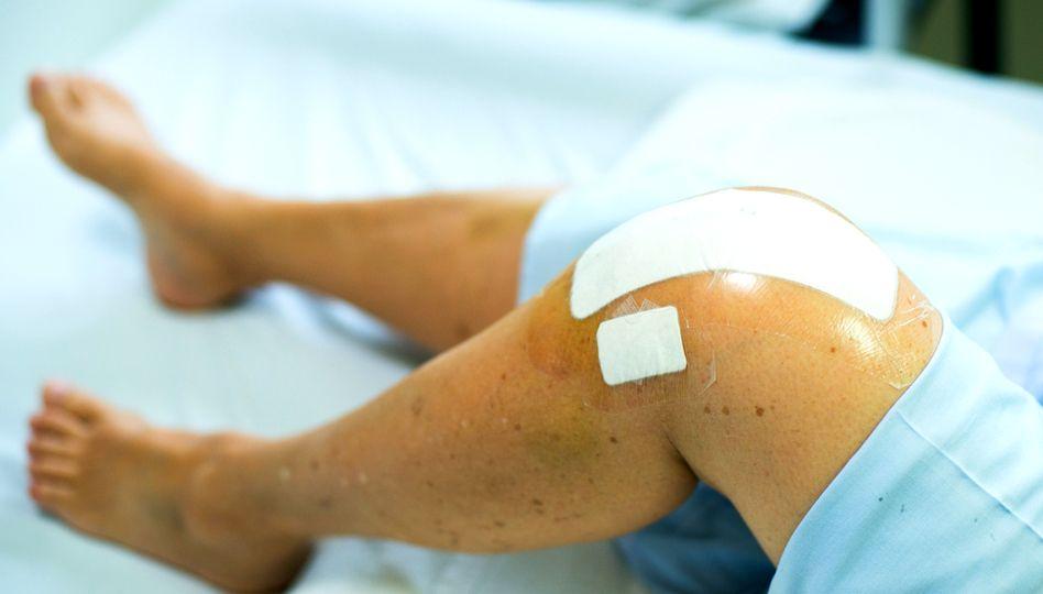 articulații artificiale ale genunchiului artrita purulentă a simptomelor și tratamentului genunchiului