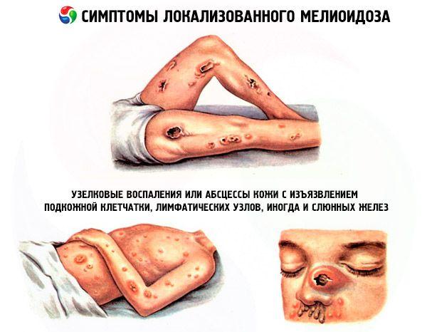 pentru tratarea artrozei șoldului cauza durerii articulare și osoase