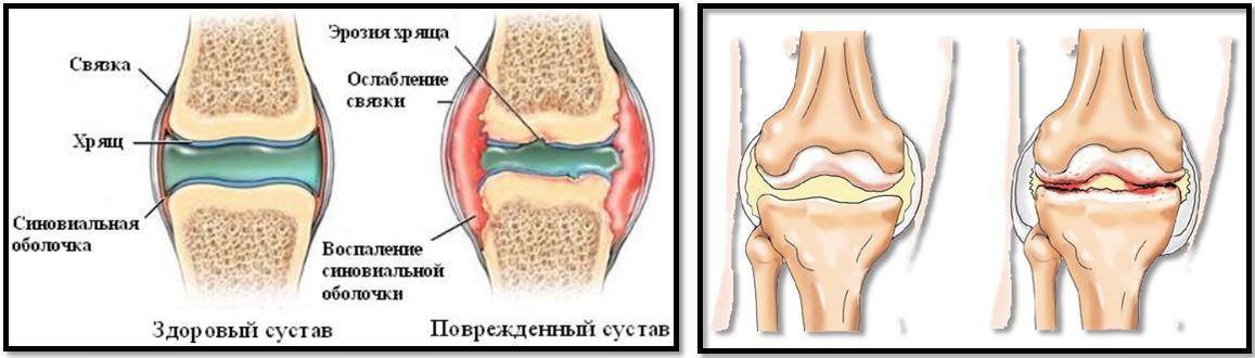 frison dureri articulare decât tratament artroză tratamentul genunchiului