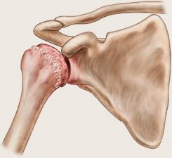 dureri articulare hallux valgus durere acută în articulația mâinii drepte