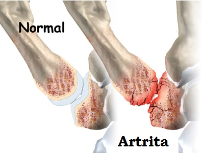 artrita degenerativa
