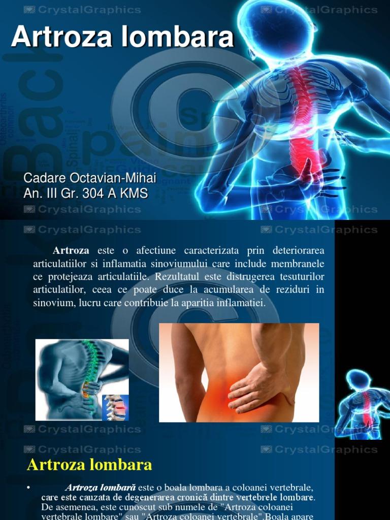 artroza coloanei vertebrale și articulațiilor