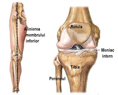 tratamentul varicosera al genunchiului)