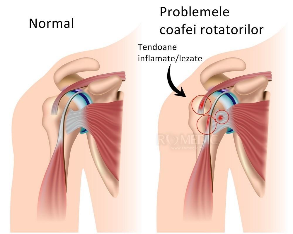 articulațiile rănite din metotrexat artroza tratamentului articulației mâinilor