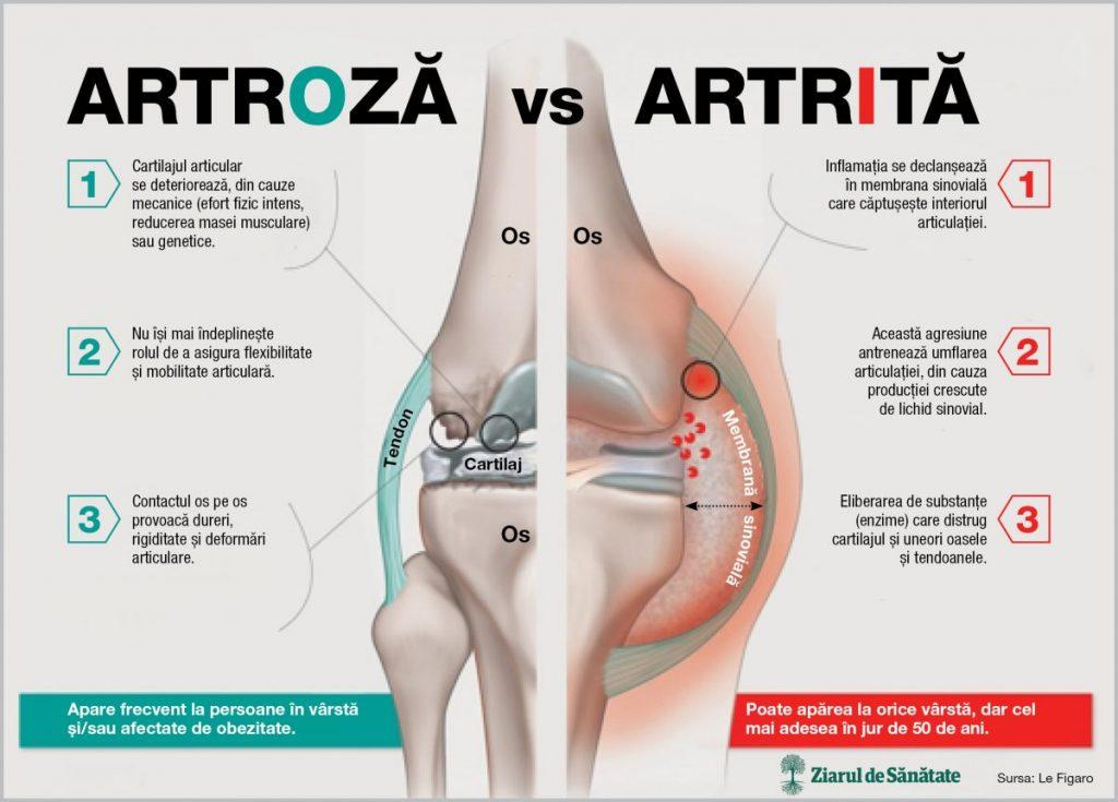 Durerea Articulară Și Pierderea Rapidă În Greutate, Nu pot pierde în greutate articulațiile rănite