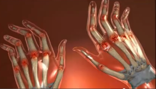 cum se tratează sindromul articulației carpiene articulații cu pneumonie