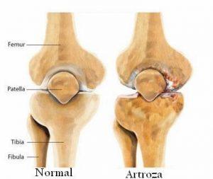 Dezvoltare comună pentru artroză