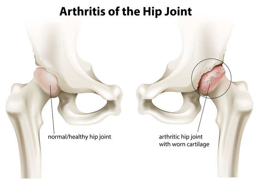 durere în articulația șoldului drept la femei cum să ameliorezi durerile articulare la nivelul umărului