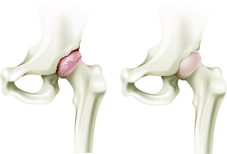 fistule pe articulație și tratamentul acestora ce ierburi se beau pentru durerile articulare