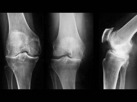 Cum să învingi artroza genunchilor
