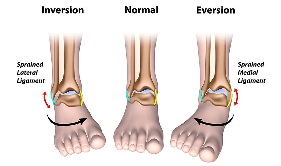 examen pentru artroza articulației gleznei