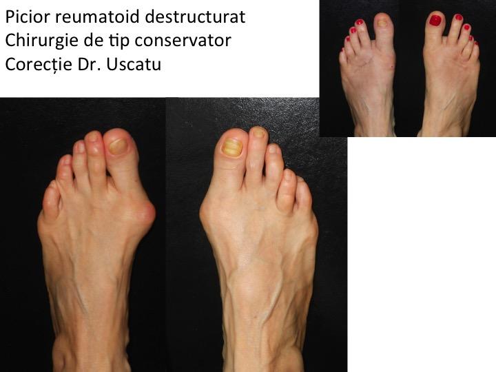 artroza articulațiilor mijlocii artrita nediferențiată a gleznei