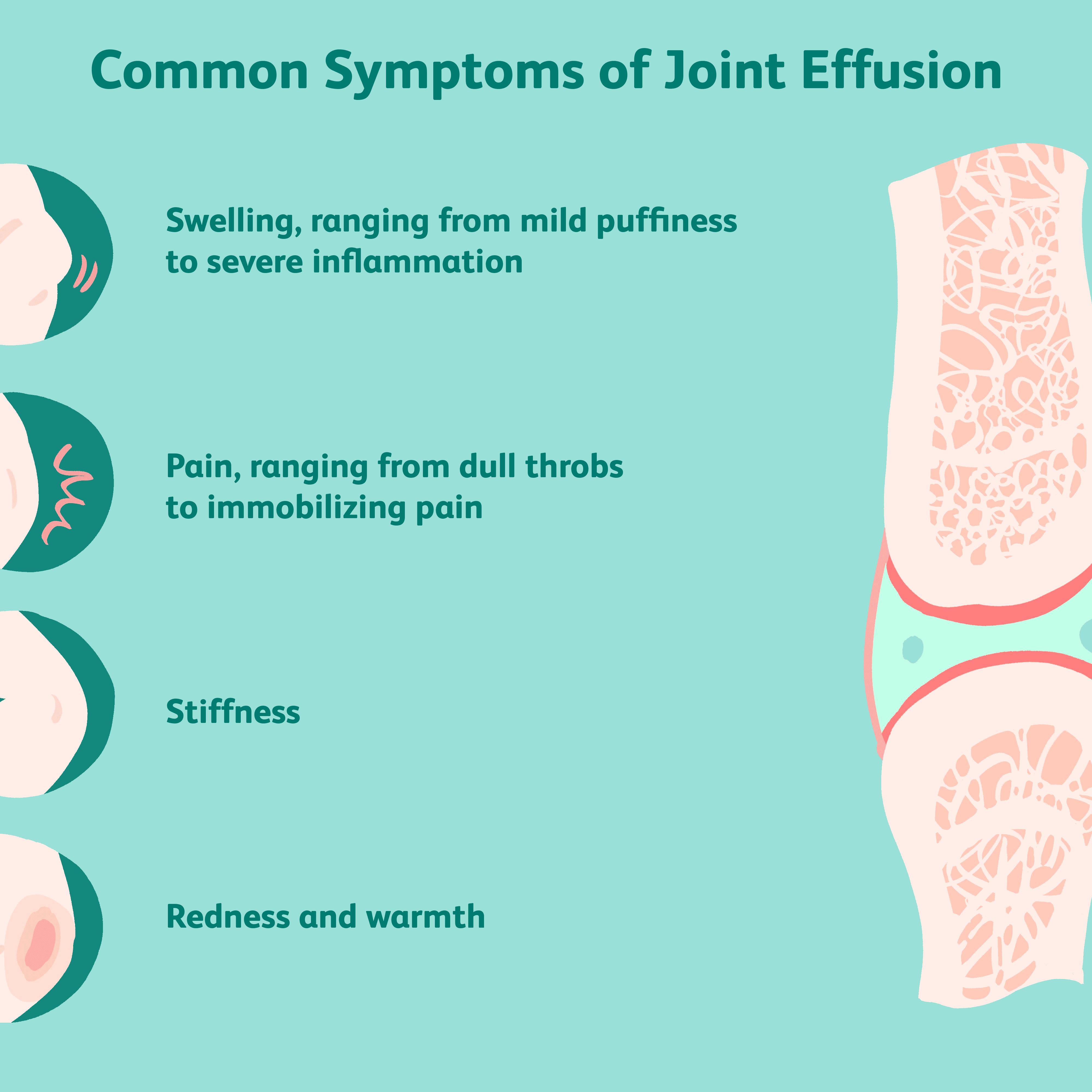 blocarea injecției în urma durerilor de genunchi