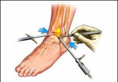 artroza la glezna simptome