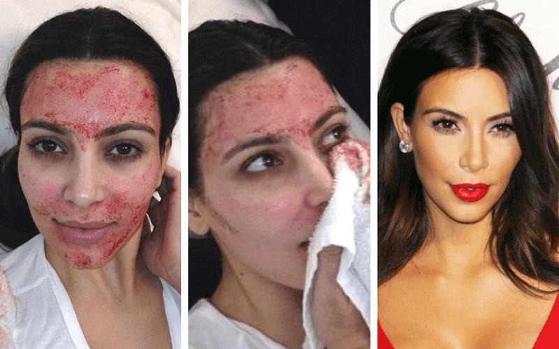 tratarea articulațiilor faciale