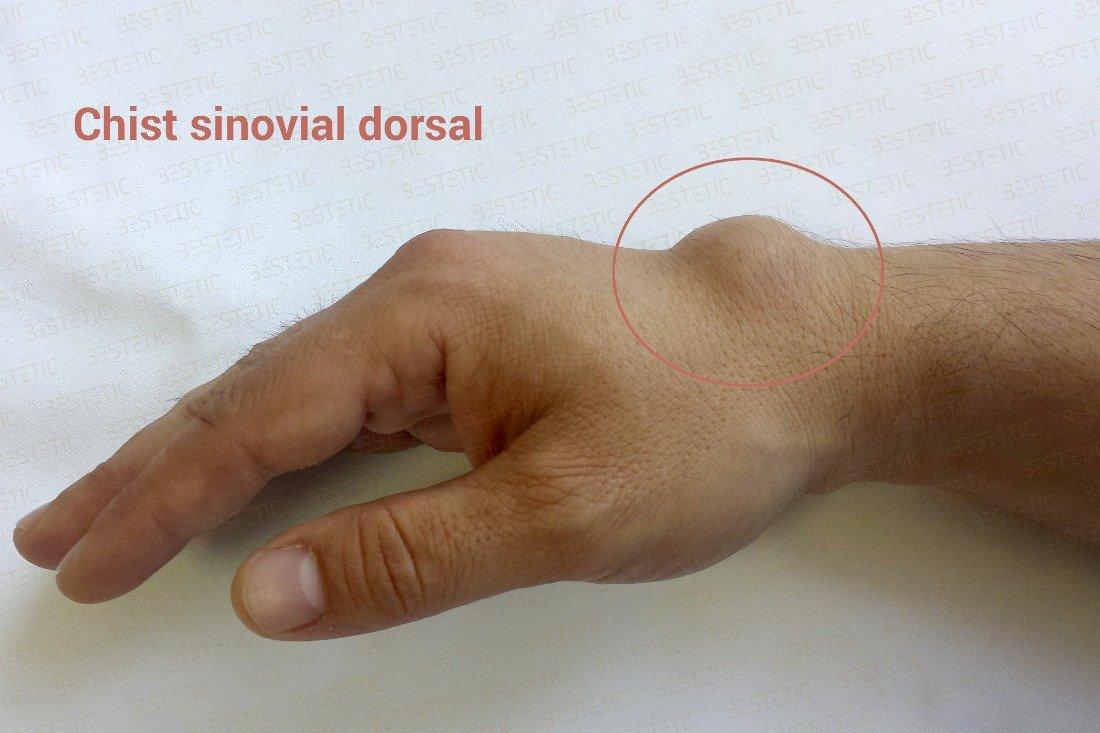 tratamentul articulațiilor genunchiului decât tratamentul dureri de umăr cu